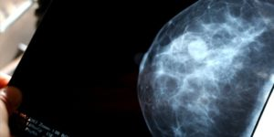 To Screen Or Not To Screen For Breast Cancer?